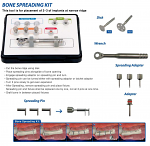 Bone Spreading Kit (Surgident)