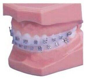 Impression Protector - Dentsply Sirona