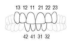 Faciform Labial Matrix - Directa