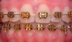 Gold Plated NiTi Archwires 24K
