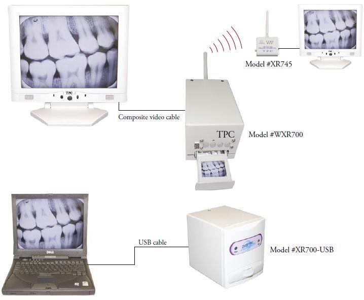 X-ray Film Reader- TPC