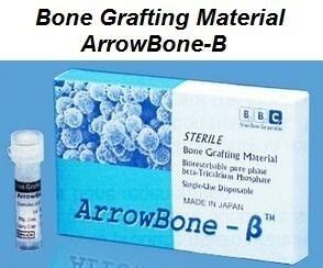 Arrowbone-B Bone Grafting Material - Brain Base