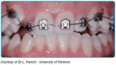 Performed archwires V bend for self-ligating brackets (Leone)