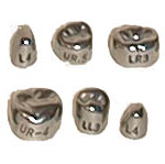 Stainless Steel Permanent 1st Molar Crowns - DSC
