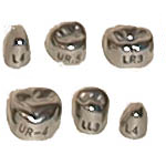 Stainless Steel Permanent Second Molar Crowns - DSC