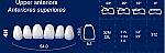 Upper Anterior Acrylic Resin Teeth #4H (NewTek)