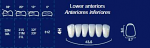Lower Anterior Acrylic Resin Teeth #4H (NewTek)