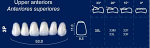 Upper Anterior Acrylic Resin Teeth #3P - NewTek