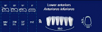 Lower Anterior Acrylic Resin Teeth #2P (NewTek)