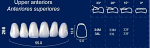 Upper Anterior Acrylic Resin Teeth #266 - NewTek