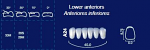 Lower Anterior Acrylic Resin Teeth #A24 (NewTek)