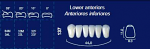 Lower Anterior Acrylic Resin Teeth #137 (NewTek)