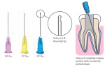 OptiProbe Side Open Closed End Needle Tips - PacDent