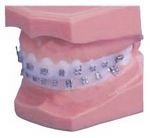 Impression Protector (Dentsply)