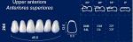 Upper Anterior Acrylic Resin Teeth #264 - NewTek
