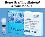 Arrowbone-B Bone Grafting Material (Brain Base)