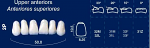 Upper Anterior Acrylic Resin Teeth #2P - NewTek