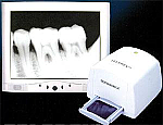 Telerex Video X-Ray Film Viewer (Dentamerica)