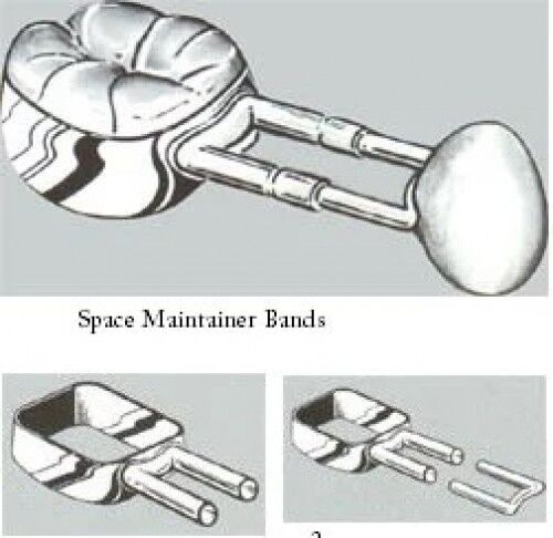 Space Maintainer Bands - DSC