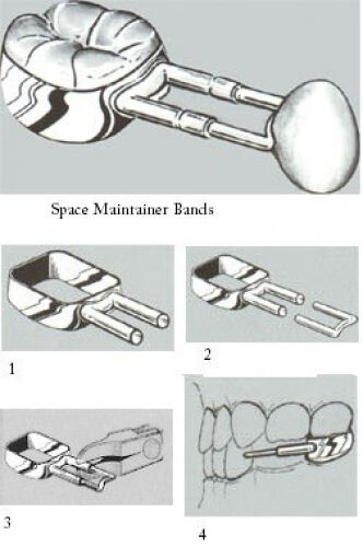 Band Space Maintainer Kit